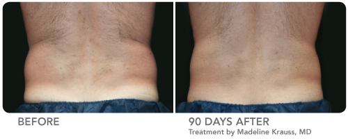 CDLC CoolSculpting Before and After