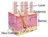 Fraxelated Laser at Cosmetic Dermatology and Laser Center