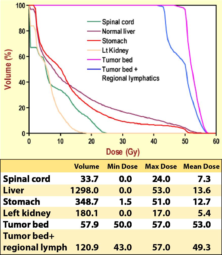 Case 4, IMRT dose statistics