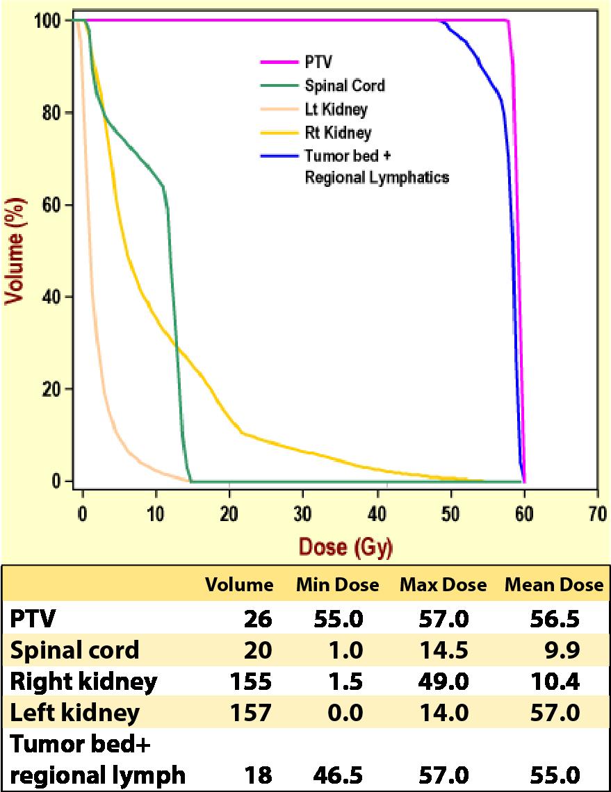 Case 4, 3-D dose statistics