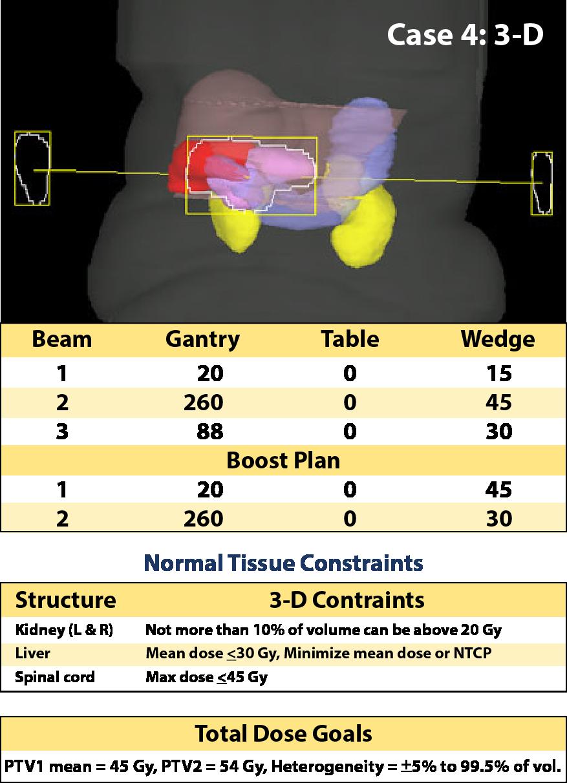 Case 4, 3-D planning parameters