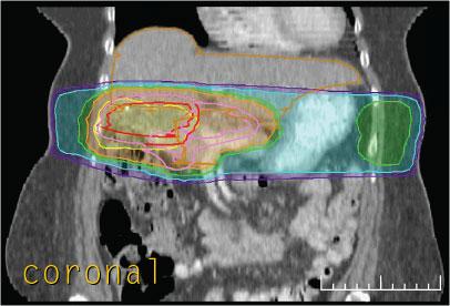 Case 4, 3-D dose distribution, coronal view section