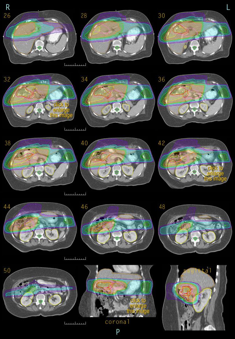Case 4, 3-D dose distribution