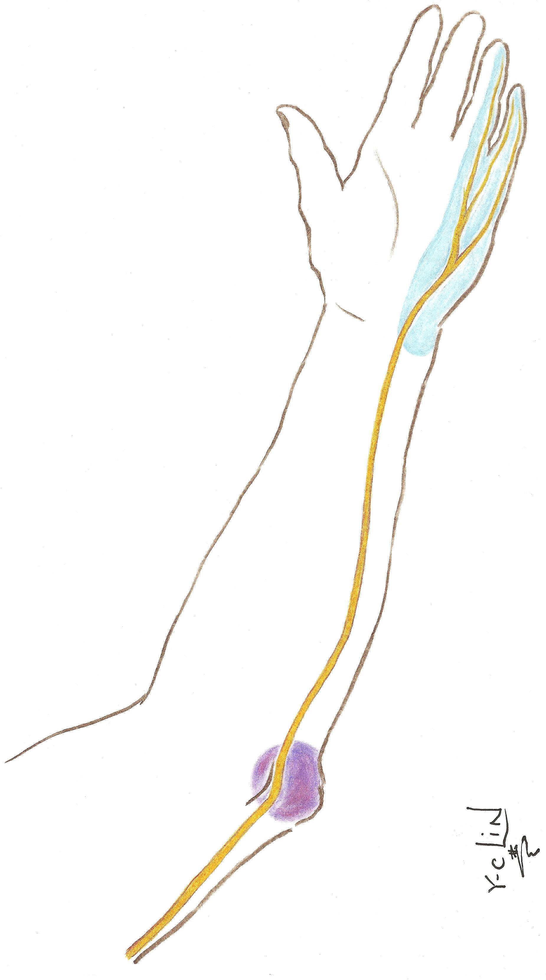 Ulnar Neuropathy