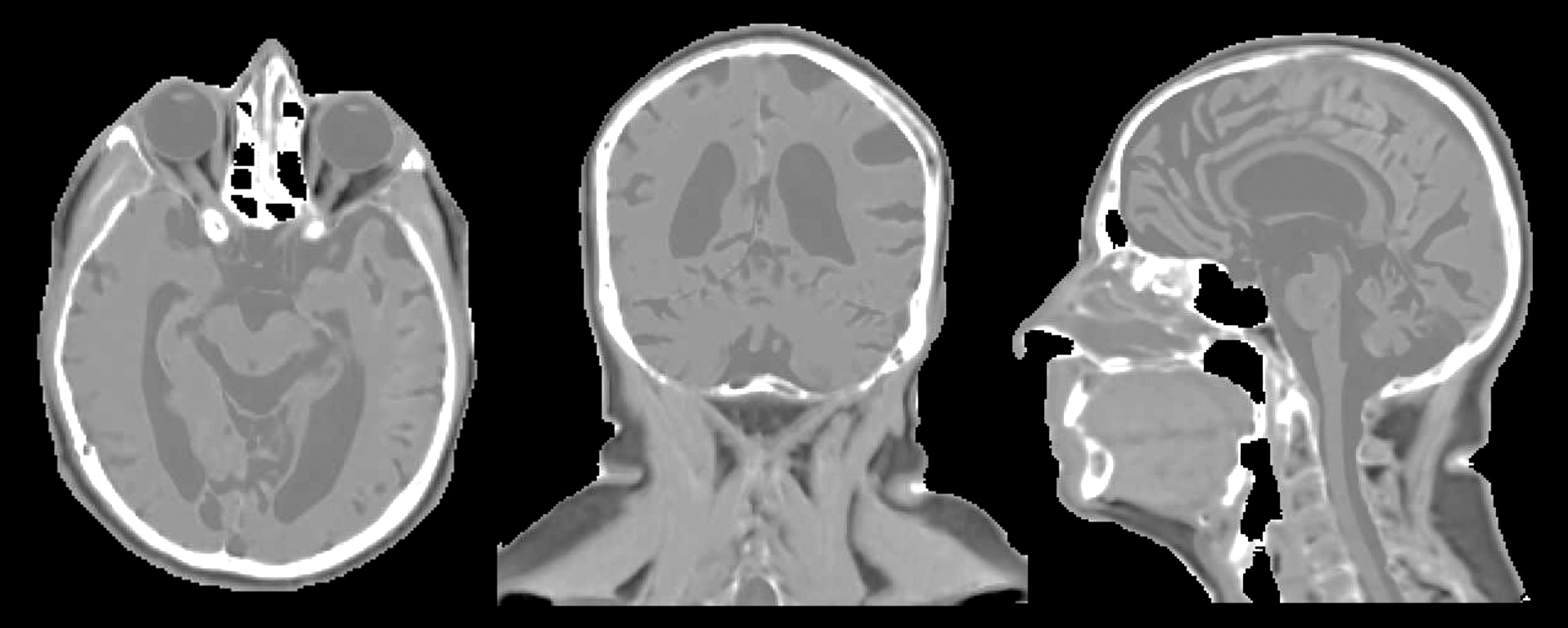 Synthetic CT of the head