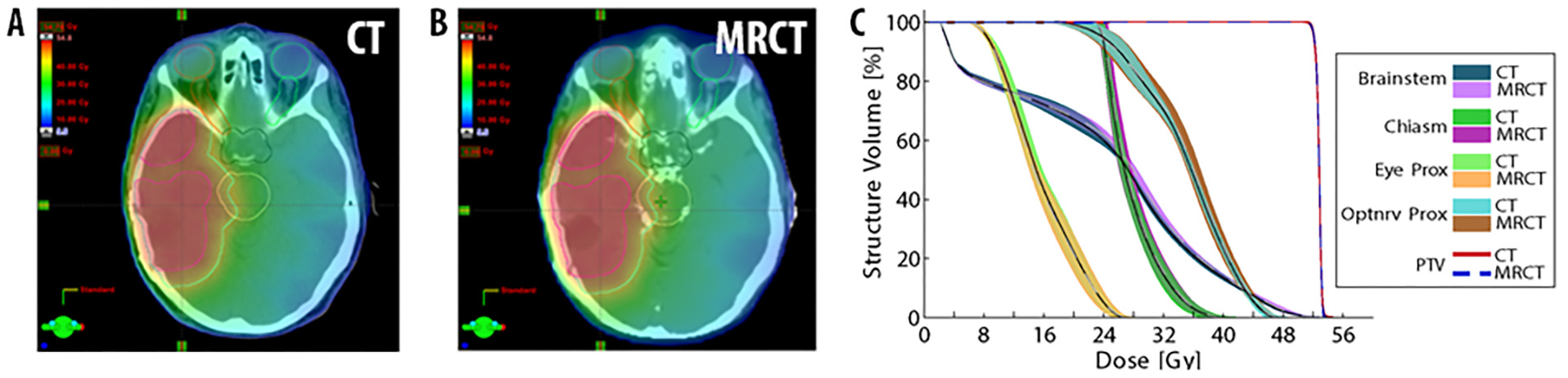 CT and MRCT of head