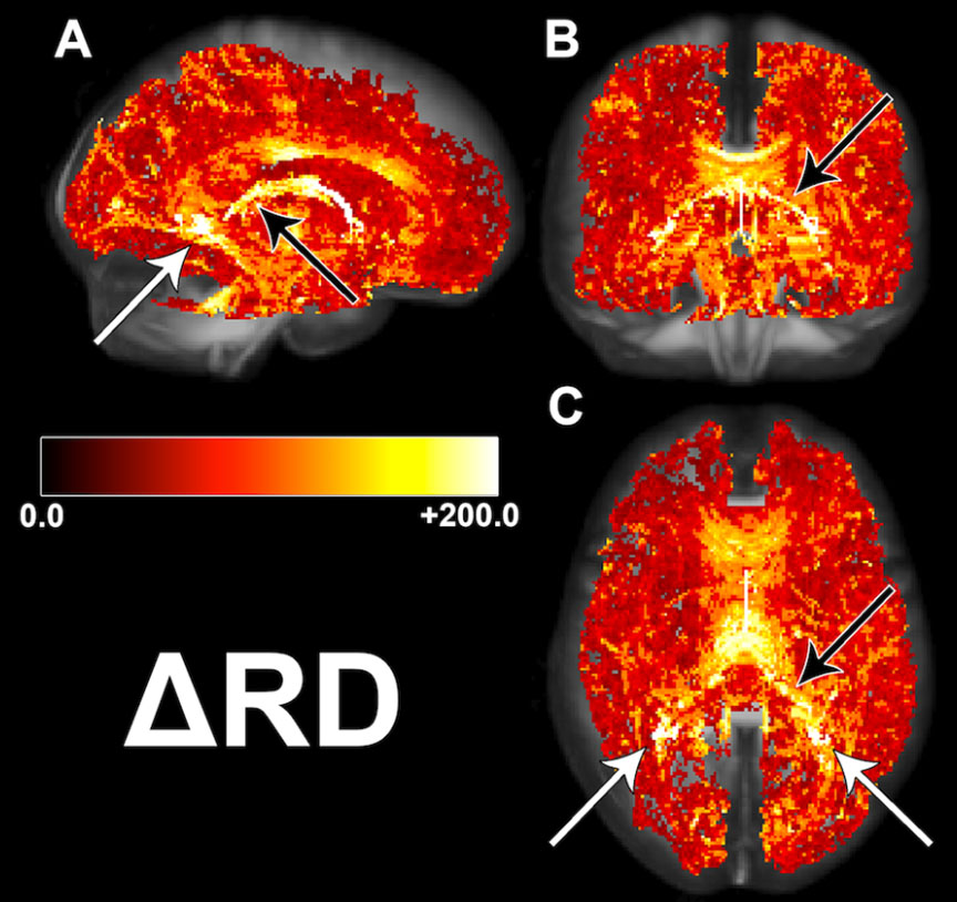 Illustration of radial diffusivity changes in the brain of patients who received whole brain radiation therapy for brain metastases.