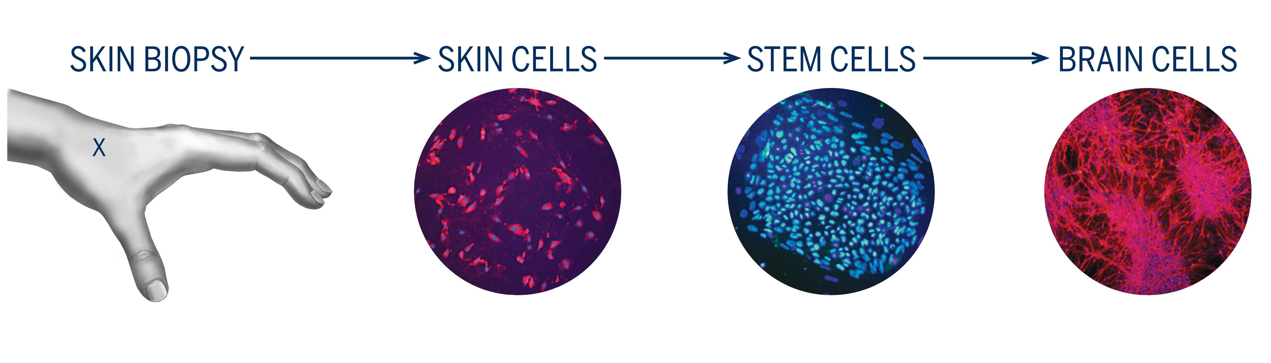 Skin biopsy image