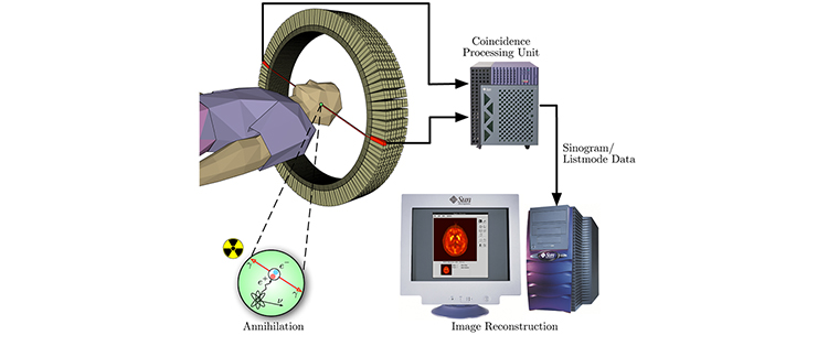 cardiac pet scan machine