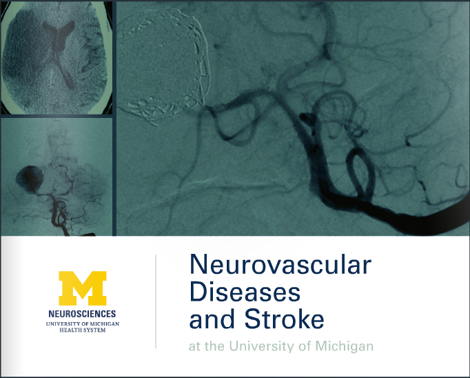 Neurosurgery Neurovascular Diseases and Stroke Brochure