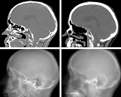 Synthetic CT and synthetic DRR from MR images compared to CT and DRR