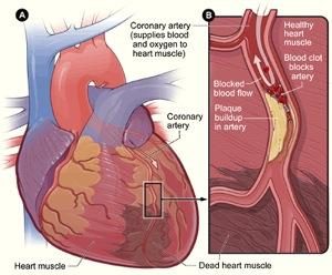 Heart Damage Block - Department of Cardiac Surgery