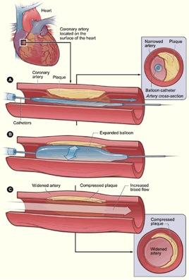 Coronary Angioplasty - Department of Cardiac Surgery