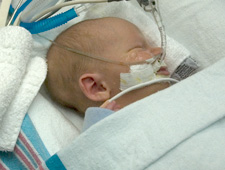 Child in Pediatric Cardiothoracic Intensive Care Unit