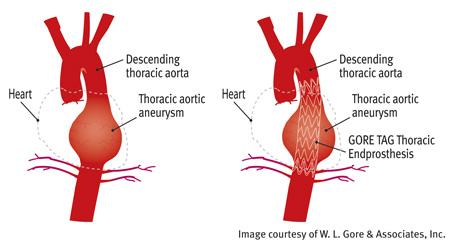 Thoracic Aortic Aneurysm Repair