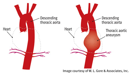 Thoracic Aortic Aneurysm for Department of Cardiac Surgery