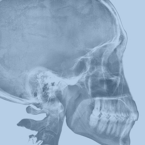 X ray of a skull icon