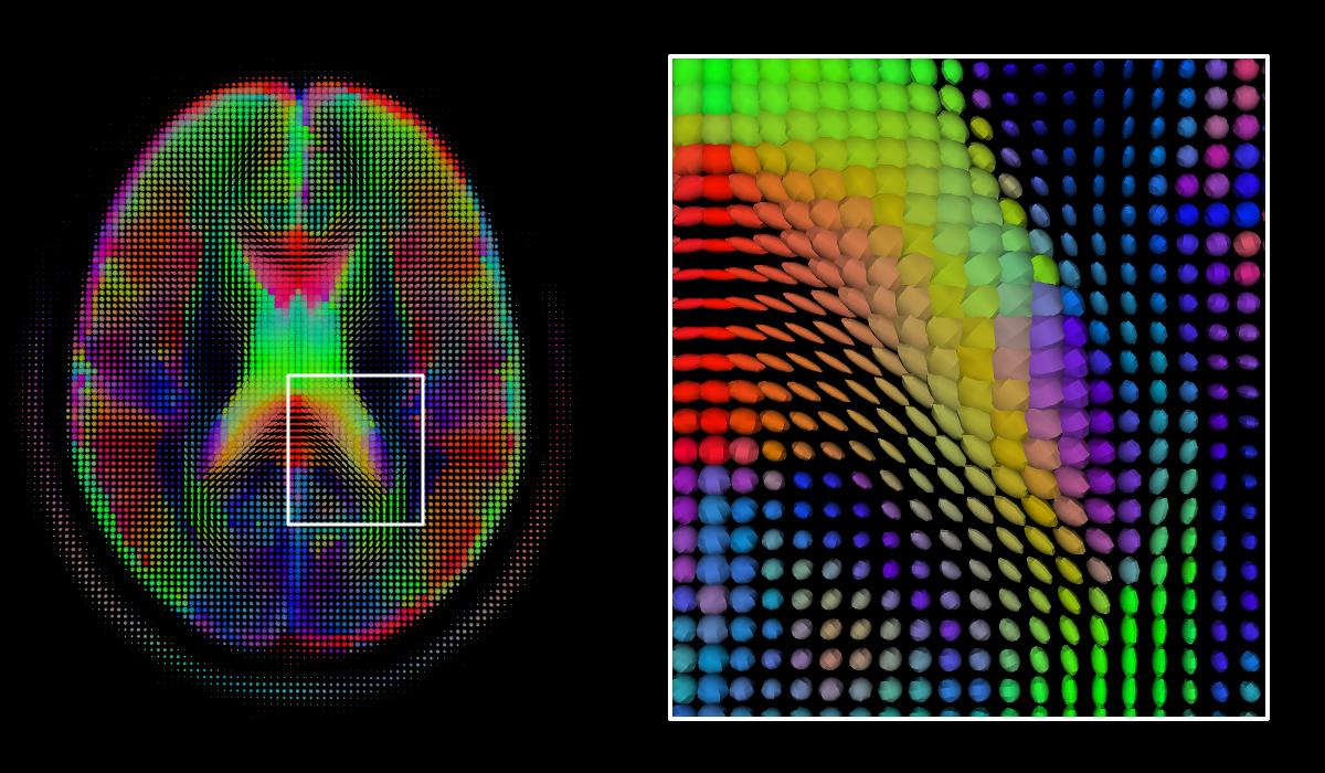image of MRI scans
