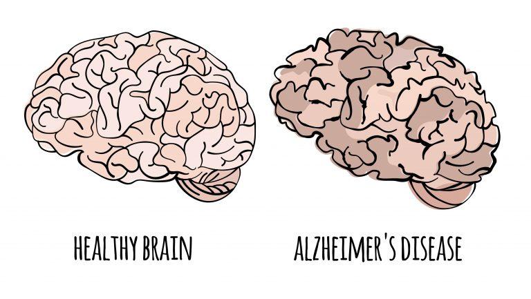 Alzheimer's Disease Brain Graphic