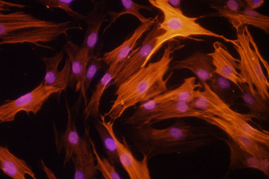 Exploring New Treatments for Autoimmune Diseases