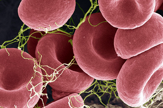 Impeding White Blood Cells in Antiphospholipid Syndrome Reduced Blood Clots