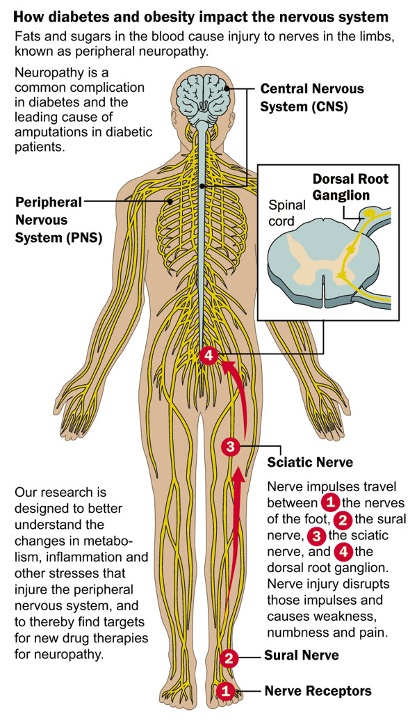 graphic describing how diabetes affects the nervous system