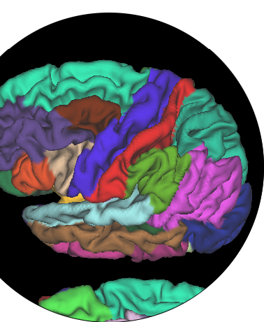 MRI image from the NeuroNetwork for Emerging Therapies of an obese person brain