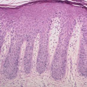 Guttate psoriasis treatment medscape, Plakkos psoriasis medscape drog