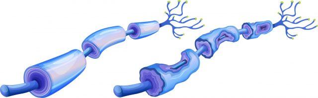 Peripheral neuropathy graphic