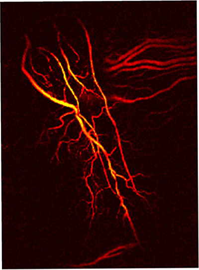 A photoacoustic microscopy image reveals the structure of newly forming retinal blood vessels.