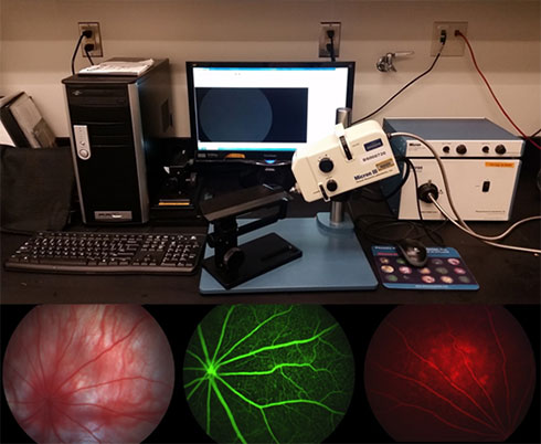 Phoenix Micron III Retinal Imaging System