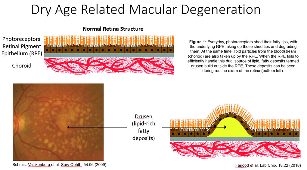 Dry Age-Related Macular Degneration