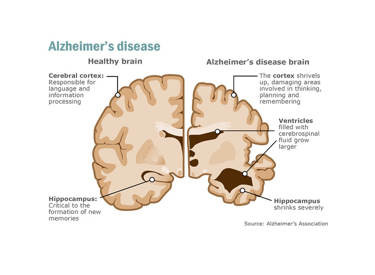 a graphic that shows the affect of Alzheimer's Disease