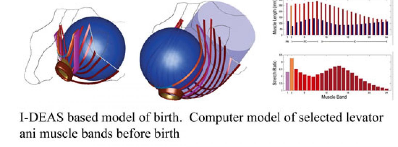 I-DEAS birth model