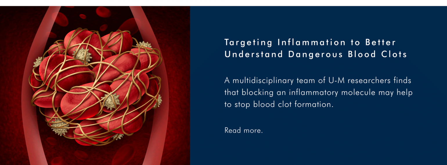 Targeting inflammation to better understand dangerous blood clots