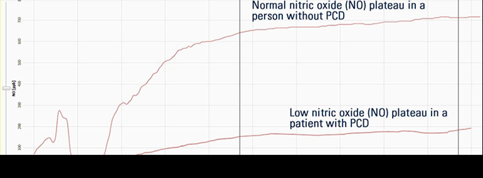 Nasal nitric oxide testing now part of comprehensive Primary Ciliary Dyskinesia program