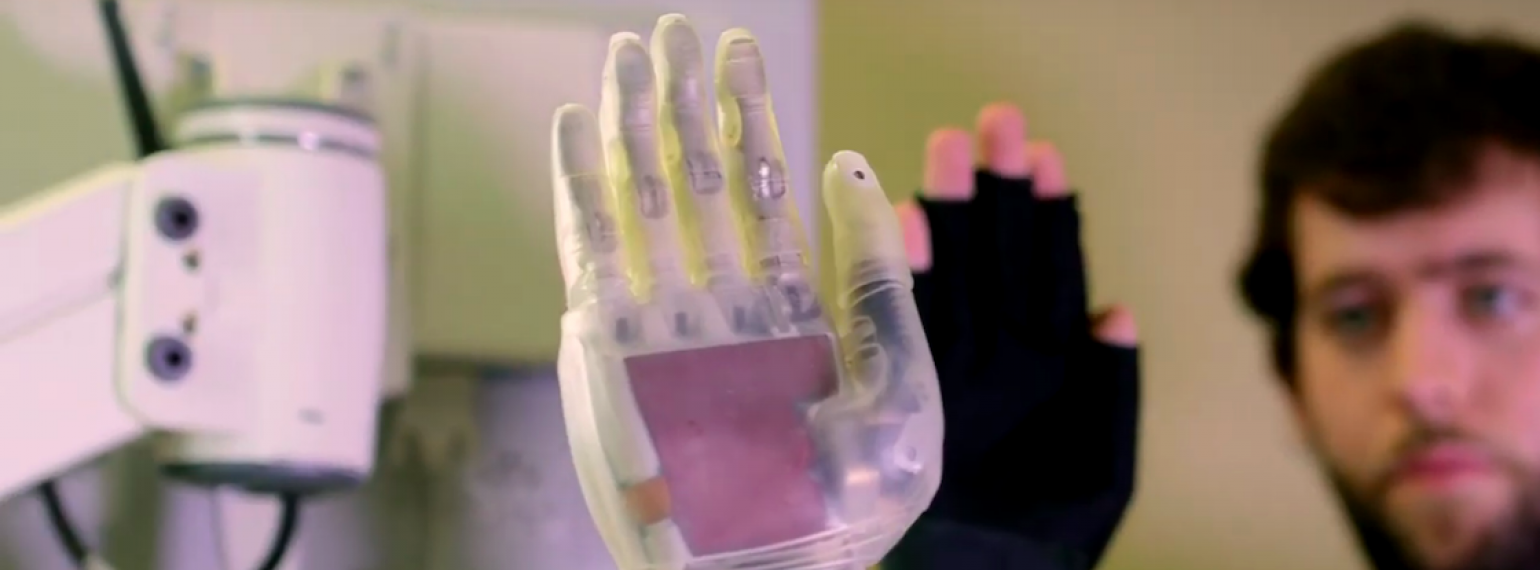Neuromuscular Lab Prosthetic