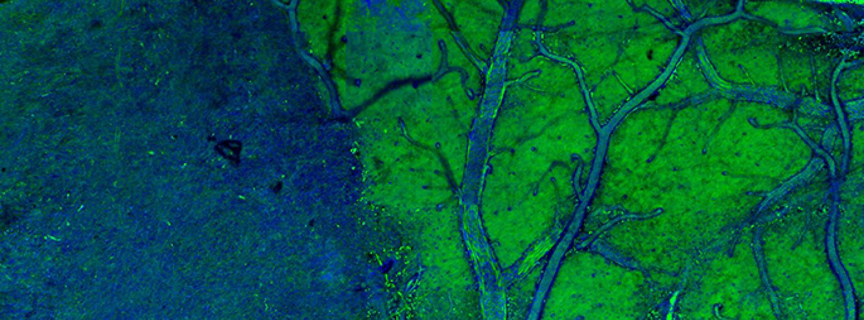Orringer et al. - SRS Microscopy Tells Tumor From Normal Tissue