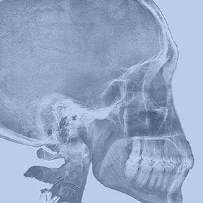 X ray of a skull
