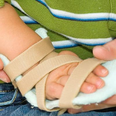 Broken Hand in splint