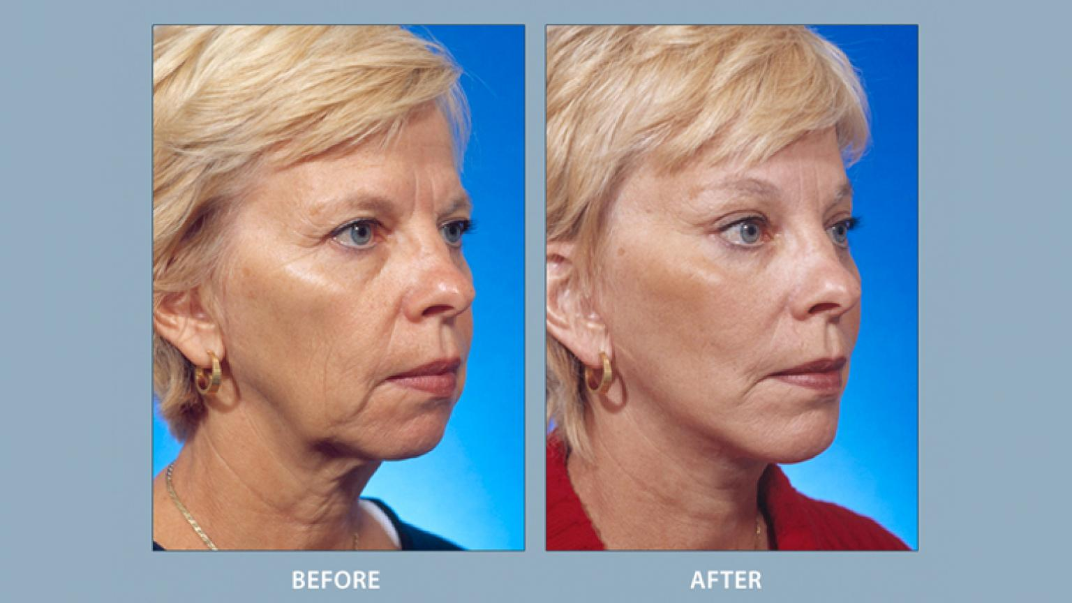 Facelift | Facial Cosmetic Surgery | Michigan Medicine