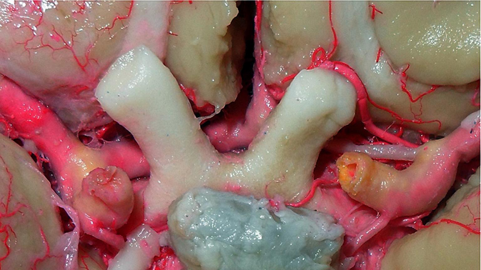optic chiasm hypophysis willis