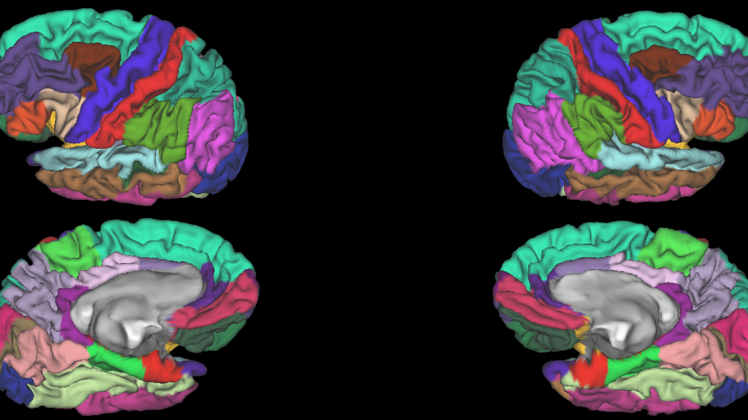 NeuroNetwork for Emerging Therapies Lab photo of MRI dynamic color mapping that qualitates different brain regions