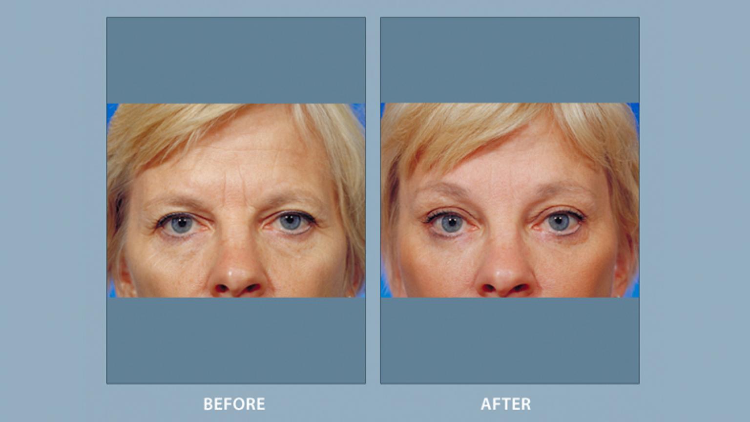 Eyelid Surgery | Facial Cosmetic Surgery | Michigan Medicine
