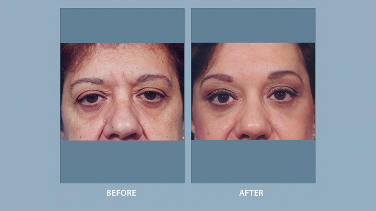 Foreheadbrow Lift Facial Cosmetic Surgery Michigan Medicine