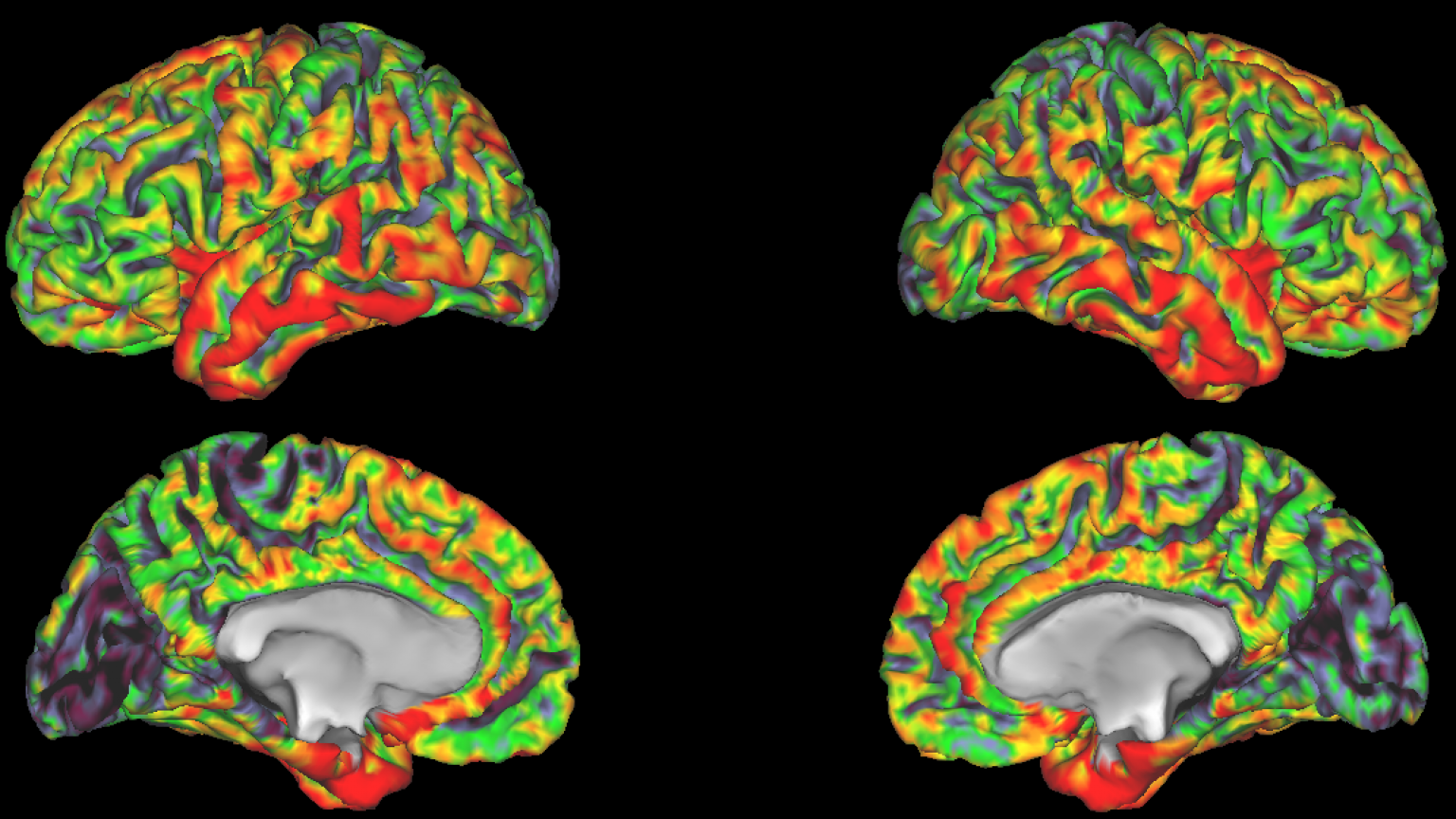 NeuroNetwork for Emerging Therapies photo of imaging measuring brain thickness