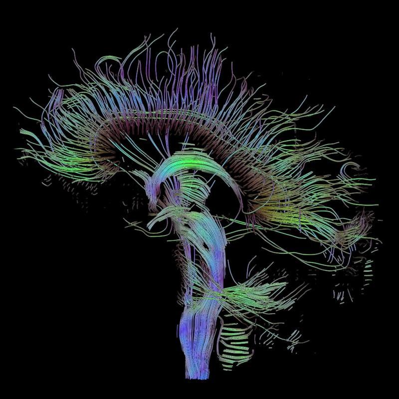 image of mri scan