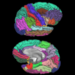 photo from NeuroNetwork for Emerging Therapies Imaging that shows MRI dynamic color mapping that qualitates different brain regions allowing for identification of new brain pathology