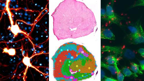 NeuroNetwork for Emerging Therapies science photos from their ALS research